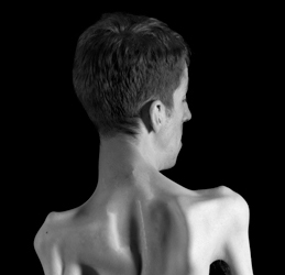 This is a Brian Charles Steel black and white photographic portrait of photographer Brian Charles Steel.  He is positioned in the right side of the frame, and his back is turned to the camera.  He is wearing no shirt and you can see the effect of scoliosis on his back.  The light creates shadows across his back that reveals the uniqueness of his form. He is wearing dark pants and his shown from just above the knees and up. The background is solid black.